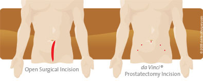 Surgical vs prostatectomy incision
